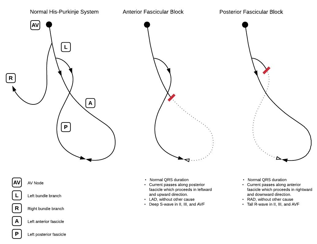His-Purkinje system and hemiblocks (anterior fascicular block, posterior fascicular block)