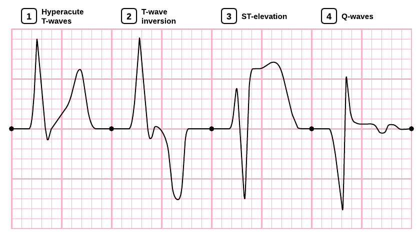 ECG changes associated with ischemia and infarction