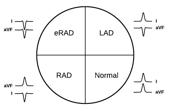 ECG axes