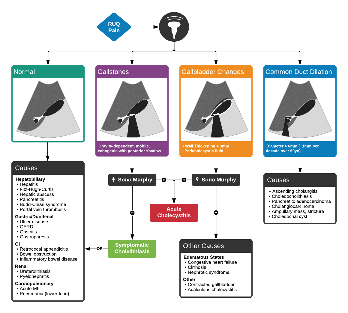 Algorithm for the Use of Ultrasound in the Evaluation of Right Upper Quadrant Abdominal Pain